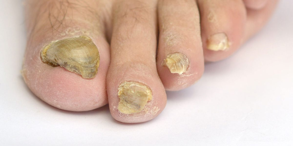 Natural Anti-Fungal Nail Treatments